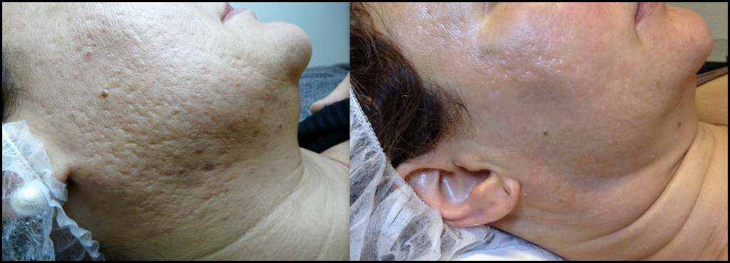 Cicatrice acne - mieux